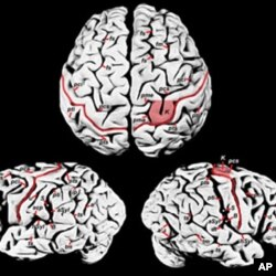 آئن سٹائن کے دماغ کی نمائش