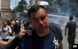 A bleeding demonstrator leaves after protesting near Rio de Janeiro's legislative assembly building, where lawmakers are considering austerity measures, Wednesday, November 16, 2016.