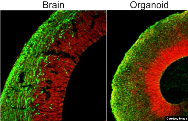 Comparison of the organoid (right) to the developing brain (left, section of a mouse brain shown). Both show neural stem cells in red and neurons in green. (Credit: Marko Repic and Madeline A. Lancaster)