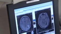 ¿Cura para cáncer Cerebral?