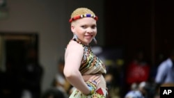 13 juin : journée de sensibilisation à l'albinisme
