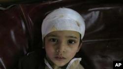 دھماکے میں زخمی ہونے والا ایک بچہ