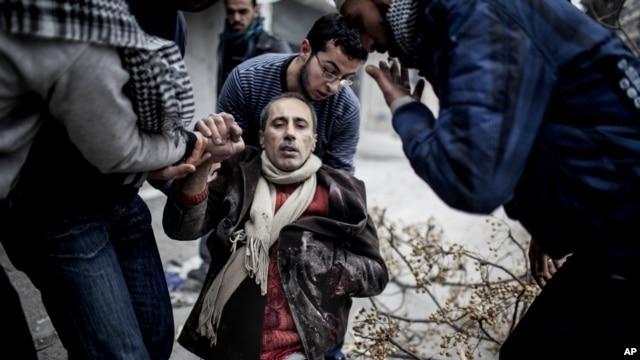 13일 시리아 알레포 인근 사이프 알다왈라에서 박격포 공격으로 부상을 입은 주민을 주변 사람들이 돕고 있다.
