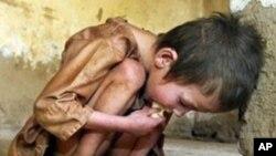 امریکہ کی 38ریاستوں میں بچوں کی غربت کی سطح میں اضافہ ہوا ہے: سروے رپورٹ