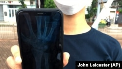In this October 7, 2019, photo, an organizer of an underground network of volunteer Hong Kong medics that are treating injured protesters shows an X-ray image on her mobile phone that revealed a fracture above the left wrist of a protester in Hong Kong.