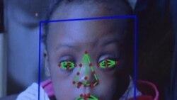 Рана детекција на Дауновиот синдром