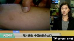 VOA连线:阿片战役,中国的致命出口