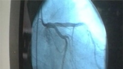 New Heart Stents Better Than Old Ones, Study Says