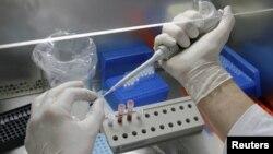 Las primeras pruebas de laboratorio determinaron que se trata de una cepa raramente vista en este hemisferio.