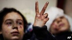 Foto de archivo de una niña de 12 años y de su hermana de 13, sobrevivientes de un bombardeo en Idlib, en el norte de Siria.
