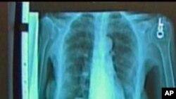 پھپھڑوں کے کینسر کی تشخیص میں پیش رفت