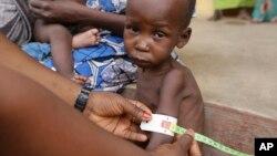 Bác sĩ chăm sóc cho một em bé bị suy dinh dưỡng tại trại tị nạn ở Yola, Nigeria.
