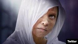 فلم 'چھپاک' تیزاب گردی کا شکار ایک بھارتی شہری لکشمی اگروال کی حقیقی زندگی میں پیش آنے والے واقعات کے گرد گھومتی ہے۔