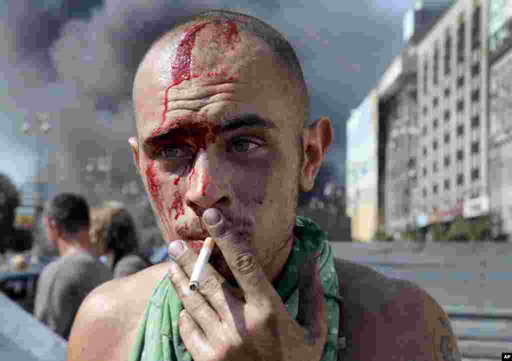 An activist smokes a cigarette after clashes with a special forces police battalion in Independence Square, Kyiv, Ukraine, Aug. 7, 2014.