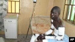 28일 나이지리아의 이슬람 과격단체 보코하람의 공격으로 부상당한 시민이 마이두구리 병원으로 이송되었다.