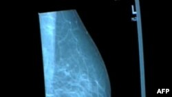 Kërkohen fonde për prova klinike të një vaksine kundër kancerit të gjirit