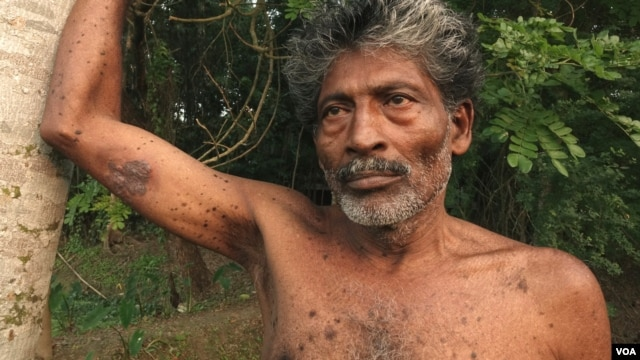 Manatosh Biswas, 51, from Teghoria village in theNorth 24 Paraganas district of West Bengal, is suffering from Bowen's Disease- a pre-cancerous condition. (M. Hussain/VOA)