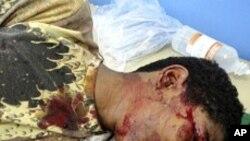 부상을 입은 예멘 시위대원
