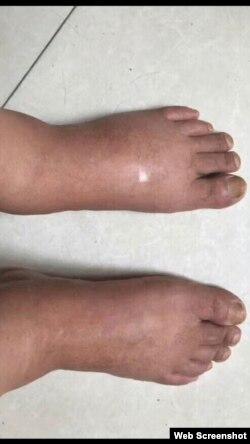 江天勇浮腫的雙腳(網絡截圖)