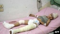 Un enfant blessé à Alep, Syrie.