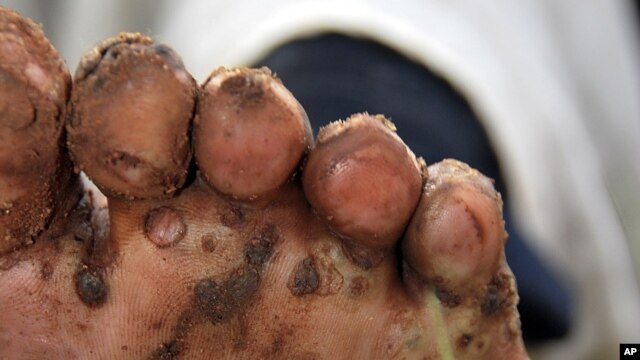 A resident of Kamuli district in eastern Uganda, displays her foot, infested by jiggers. (File Photo)