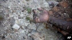 """Unas 350.000 personas en Haití necesitan asistencia médica y se prevé un """"aumento importante"""" de casos de cólera, según alertó la Organización Panamericana de la Salud (OPS)."""