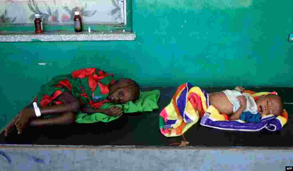 12/7: Hai đứa trẻ bị suy dinh dưỡng nặng từ Somalia nằm trên bàn tại bệnh viện Banadir, Mogadishu, Somalia.