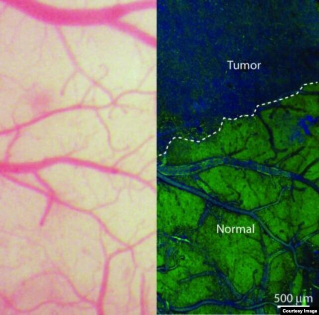 On the left, the view of the brain that neurosurgeons currently see during an operation using bright-field microscopy. On the right, an SRS microscopy view of the same area of brain - in this case, a mouse brain.