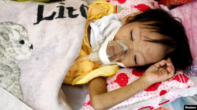 A HIV-positive girl is seen lying in a bed at the pediatric hospital in Hanoi, Vietnam, July 2010.