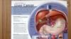 Cara-cara Baru Pengobatan Kanker Hati