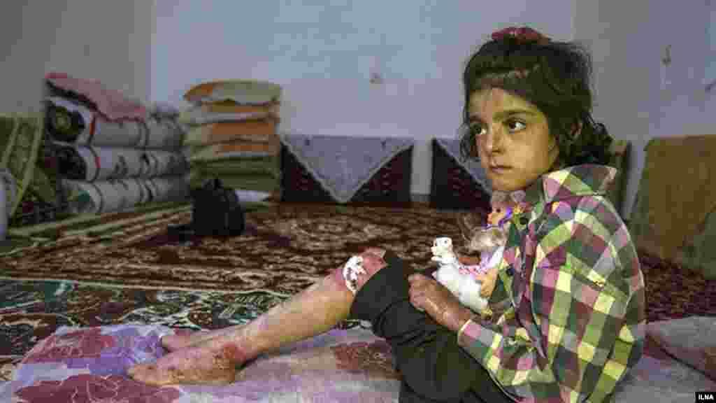 """خبرگزاری ایلنا گزارش دردناکی دارد با عنوان """"EB، مرگ خاموش کودکان جنوب کرمان"""" که در آن به کودکانی اشاره دارد که در این استان از یک بیماری پوستی شدید رنج می برند.... عکس: مصطفی معراجی، ایلنا"""
