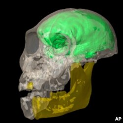 The yellow color in this scan of the young male brain cavity indicates portions of the skull that were reconstructed by mirror-imaging the anatomy on the opposite side.