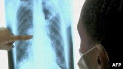 Analizë e re gjaku për zbulimin e sëmundjeve të mushkërive
