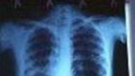 Tens of Millions of TB Patients Cured