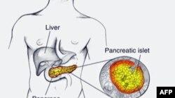 Trajtimi i kancerit në pankreas