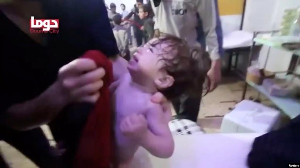 Một em bé được rửa mặt sau vụ tấn công bằng vũ khí hóa học tại Douma, Syria (ảnh ngày 8/4/2018)
