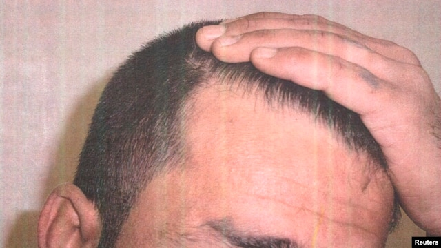 A detainee shows his scalp in an undated photo from Iraq's Abu Ghraib prison, among 198 images released in a Freedom of Information Act lawsuit against the U.S. Department of Defense in Washington, D.C., Feb. 5, 2016.