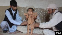 عکس آءشیف: کودکی که توسط ویروس پولیو فلج شده است