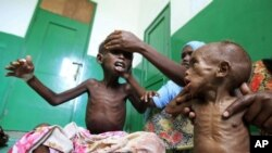 Watoto wa Somalia wenye njaa