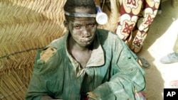 A 14-year-old boy with a pocket torch strapped to his head sits at the top of a gold mine-shaft.