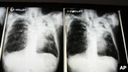 Hasil rontgen pasien yang terinfeksi tuberkulosis. Banyak pasien tuberkulosis yang resisten terhadap multiobat (multi-drugs resistant). (Foto: Dok)