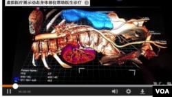 這可能是醫學的未來。隨著虛擬影像取代電腦斷層掃描和核磁共振影像,醫生們可以從不同角度詳細觀察器官。