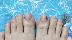 Vết đen dưới móng chân