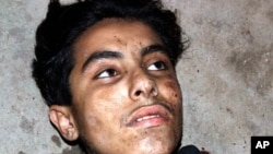 A wounded suicide bomber whose explosive vest partially detonated waits to be taken to a hospital after a suicide bombing at a shrine near Dera Ghazi Khan in Pakistan, April 3, 2011