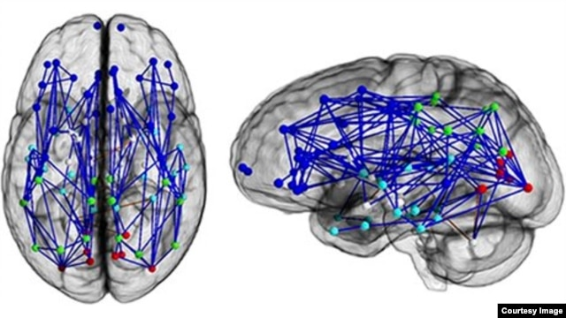 Neural map of a typical male brain. (Photo courtesy of National Academy of Sciences)