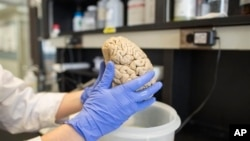 Researcher who studies brain diseases holds a human brain in laboratory at Northwestern University in the United States.