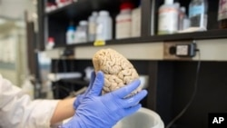FILE- Researcher holds human brain in laboratory at Northwestern University's cognitive neurology and Alzheimer's disease center, Chicago, July 29, 2013.