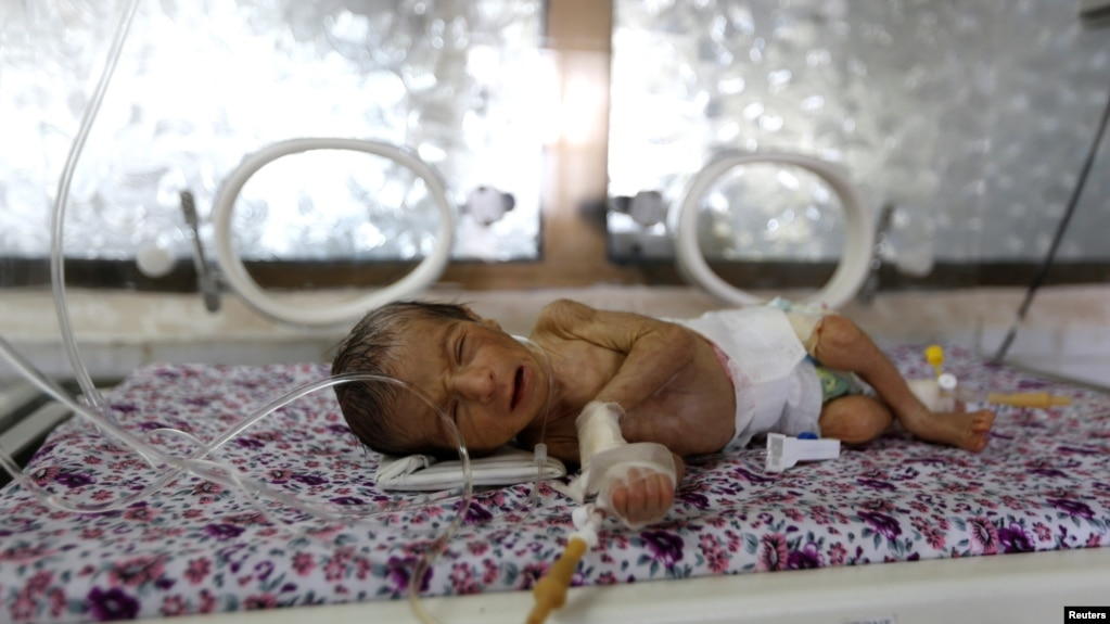 A premature baby lies in an incubator at the child care unit of a hospital in Sana'a, Yemen January 16, 2018.