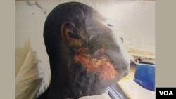 Ciwon da Habila Adamu ya samu bayan da 'yan Boko Haram suka harbeshi a ka.