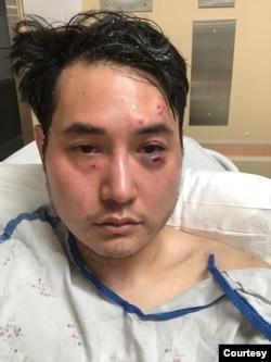 Nhà báo Andy Ngô phải nhập viện sau khi bị những người mà ông cho là Antifa tấn công vào năm 2019.